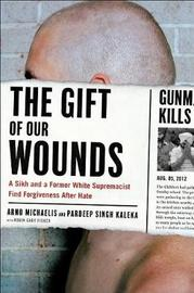 The Gift of Our Wounds by Arno Michaelis image