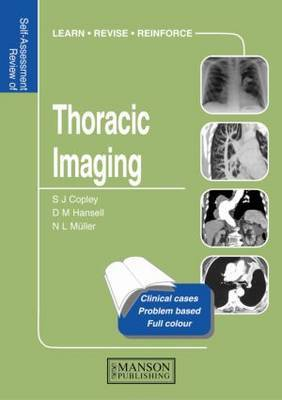 Thoracic Imaging: Self-Assessment Colour Review by Sue Copley image