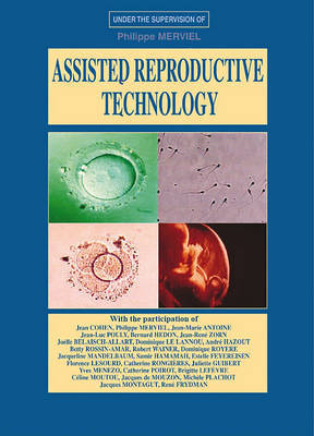 Assisted Reproductive Technology: A Reference Book on A.R.T. image