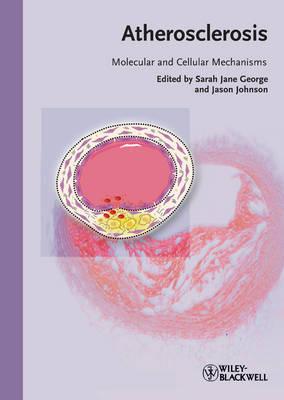 Atherosclerosis image
