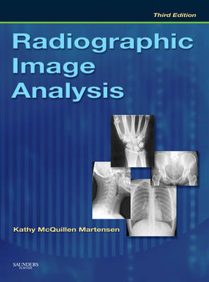 Radiographic Image Analysis by Kathy McQuillen Martensen image