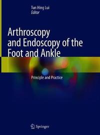 Arthroscopy and Endoscopy of the Foot and Ankle