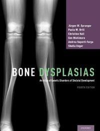 Bone Dysplasias by Jurgen W. Spranger image