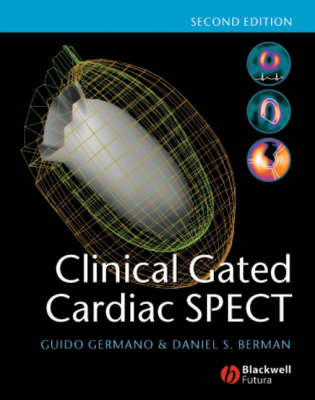 Clinical Gated Cardiac SPECT by Guido Germano