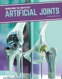 Artificial Joints by Marne Ventura