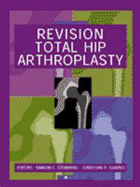 Revision Total Hip Arthroplasty by Marvin E. Steinberg image