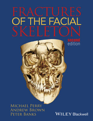 Fractures of the Facial Skeleton by Michael Perry image
