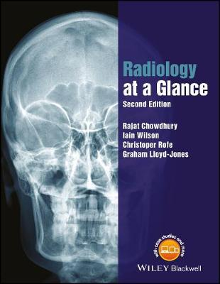 Radiology at a Glance by Rajat Chowdhury image