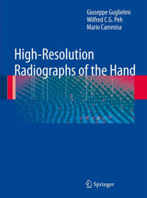 High-Resolution Radiographs of the Hand by Giuseppe Guglielmi