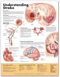Understanding Stroke Anatomical Chart image