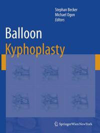 Balloon Kyphoplasty image
