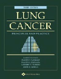 Lung Cancer: Principles and Practice image