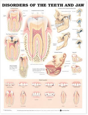 Disorders of the Teeth and Jaw Anatomical Chart image