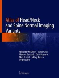 Atlas of Head/Neck and Spine Normal Imaging Variants by Alexander McKinney