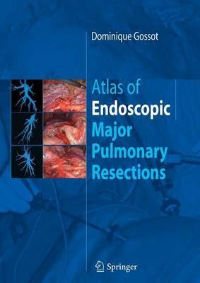 Atlas of endoscopic major pulmonary resections by Dominique Gossot