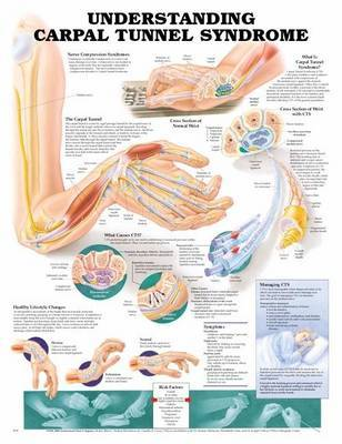 Understanding Carpal Tunnel Syndrome Anatomical Chart image