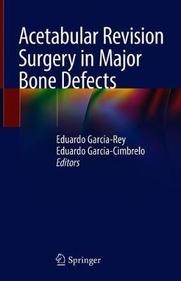 Acetabular Revision Surgery in Major Bone Defects