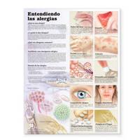 Understanding Allergies Anatomical Chart in Spanish (Entendiendo Las Alergias) image