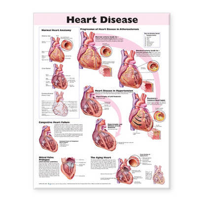 Heart Disease Anatomical Chart image