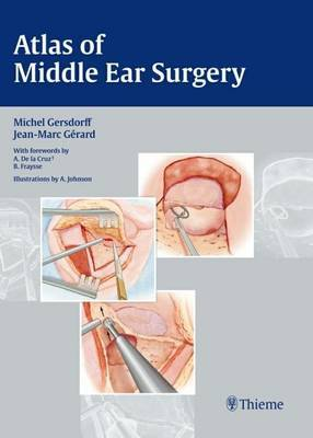 Atlas of Middle Ear Surgery by Michel Gersdorff image
