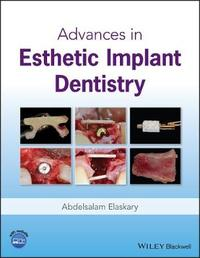 Advances in Esthetic Implant Dentistry by Abd El Salam El Askary image