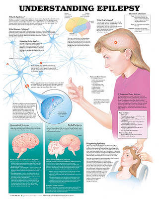 Understanding Epilepsy Anatomical Chart image