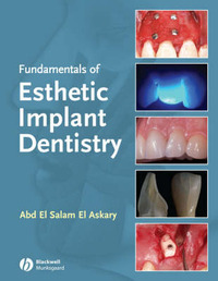Fundamentals of Esthetic Implant Dentistry by Abd El Salam El Askary image