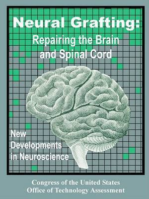 Neural Grafting: Repairing the Brain and Spinal Cord, New Developments in Neuroscience by Congress of the United States Office of
