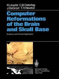 Computer Reformations of the Brain and Skull Base by Renate Unsold