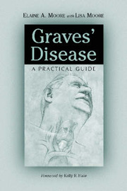Graves' Disease by Elaine A Moore