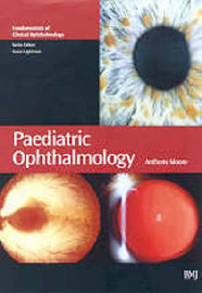 Paediatric Ophthalmology image