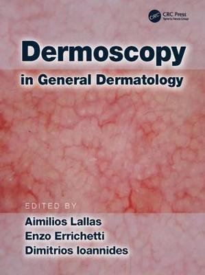 Dermoscopy in General Dermatology image