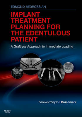 Implant Treatment Planning for the Edentulous Patient by Edmond Bedrossian image