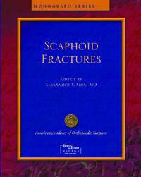 Scaphoid Fractures image