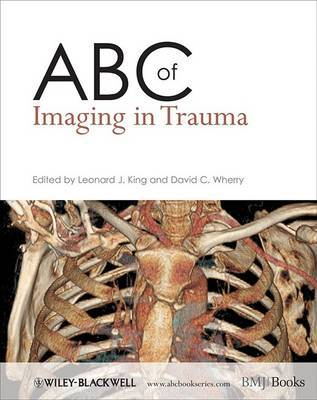 ABC of Imaging in Trauma image