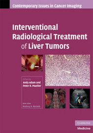 Interventional Radiological Treatment of Liver Tumors image