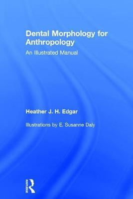 Dental Morphology for Anthropology by Heather J. H. Edgar image