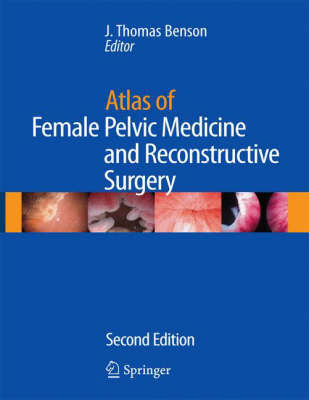Atlas of Female Pelvic Medicine and Reconstructive Surgery by Benson