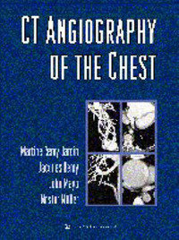 CT Angiography of the Chest by Martine Remy-Jardin