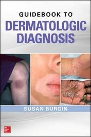 Guidebook to Dermatologic Diagnosis by Susan Burgin image