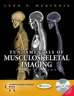 Fundamentals of Musculoskeletal Imaging by Lynn N. McKinnis