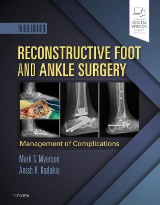 Reconstructive Foot and Ankle Surgery: Management of Complications by Mark S. Myerson