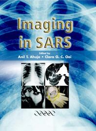 Imaging in SARS image