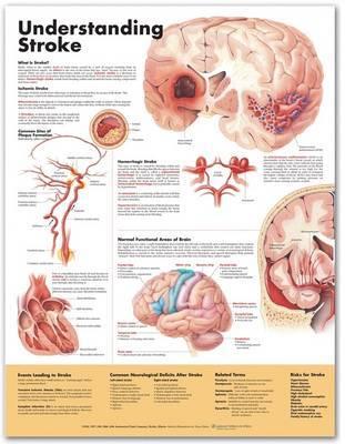 Understanding Stroke Anatomical Chart