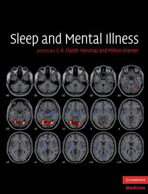 Sleep and Mental Illness