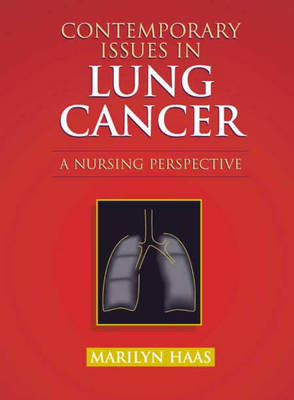 Contemporary Issues in Lung Cancer by Marilyn Haas image