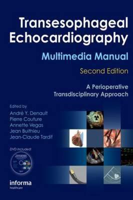 Transesophageal Echocardiography Multimedia Manual image