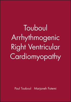 Arrhythmogenic Right Ventricular Cardiomyopathies by Paul Touboul