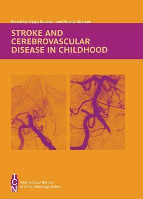 Stroke and Cerebrovascular Disease in Childhood image