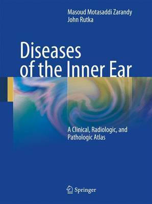 Diseases of the Inner Ear image
